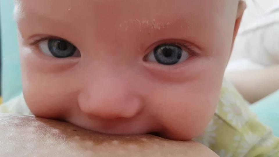 Piele deshidratata la bebelusi