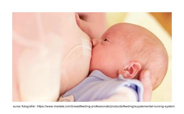 sns-supplementary-nursin-system-baby-breastfeeding
