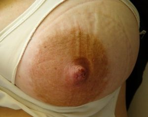 Edema-of-the-areola-300x238